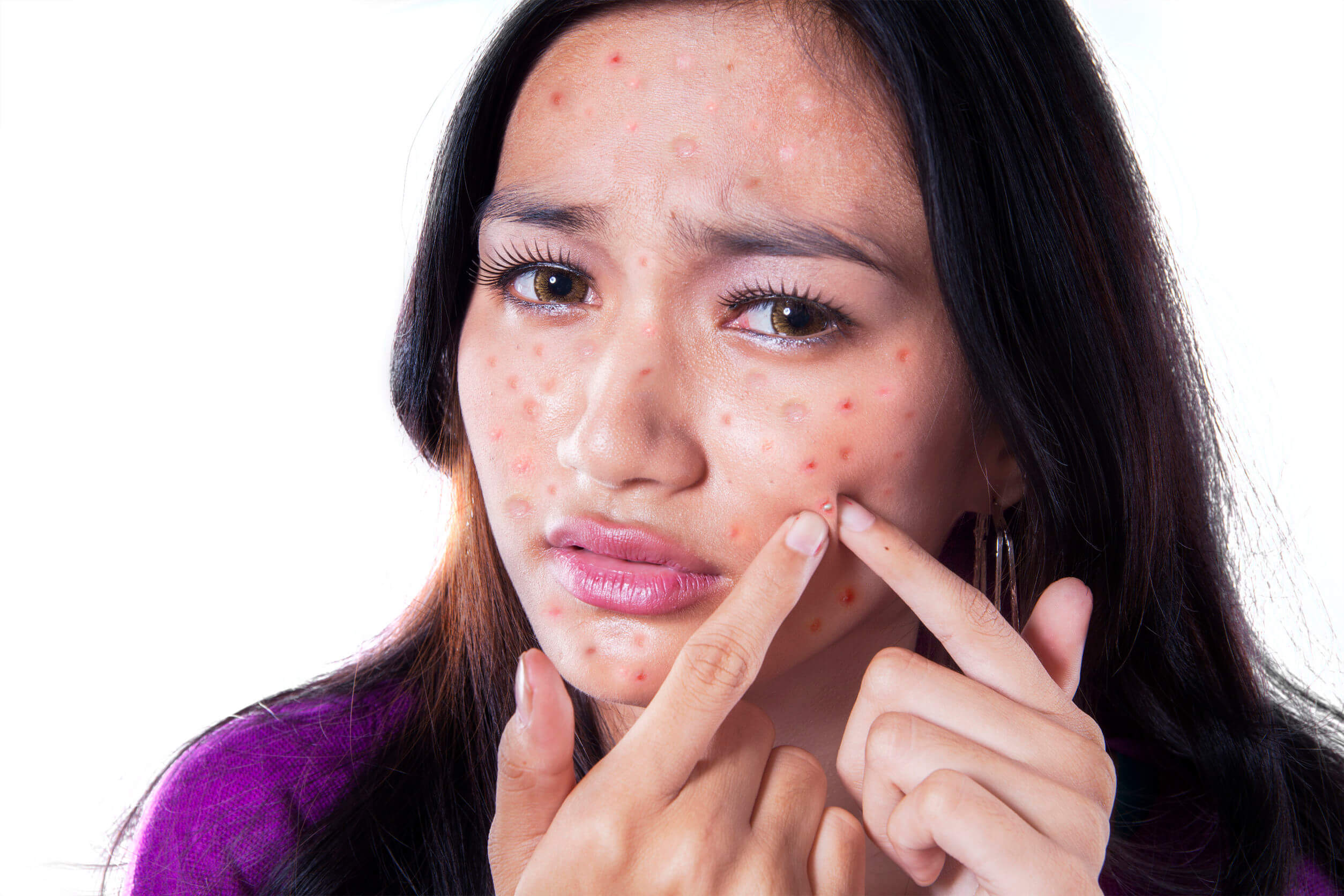 Pimples on the face can be very annoying.