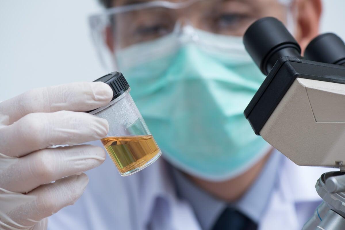 La fosfomicina se administra luego de diagnosticarse la enfermedad