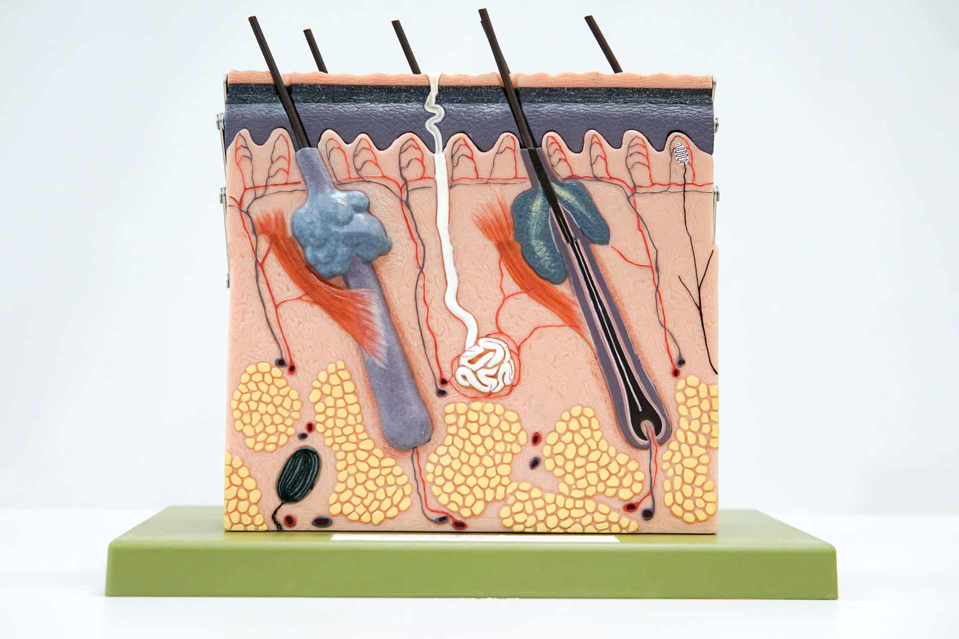 Las capas de la piel en la celulitis.
