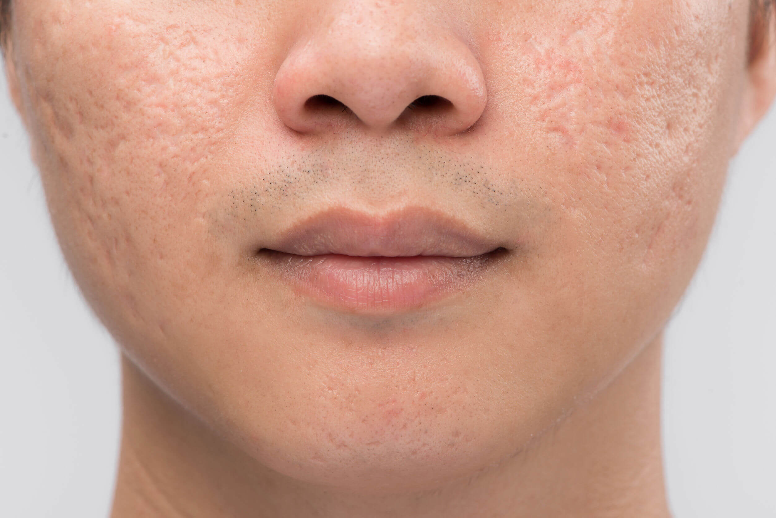 Oily skin can promote the appearance of acne and its consequences.
