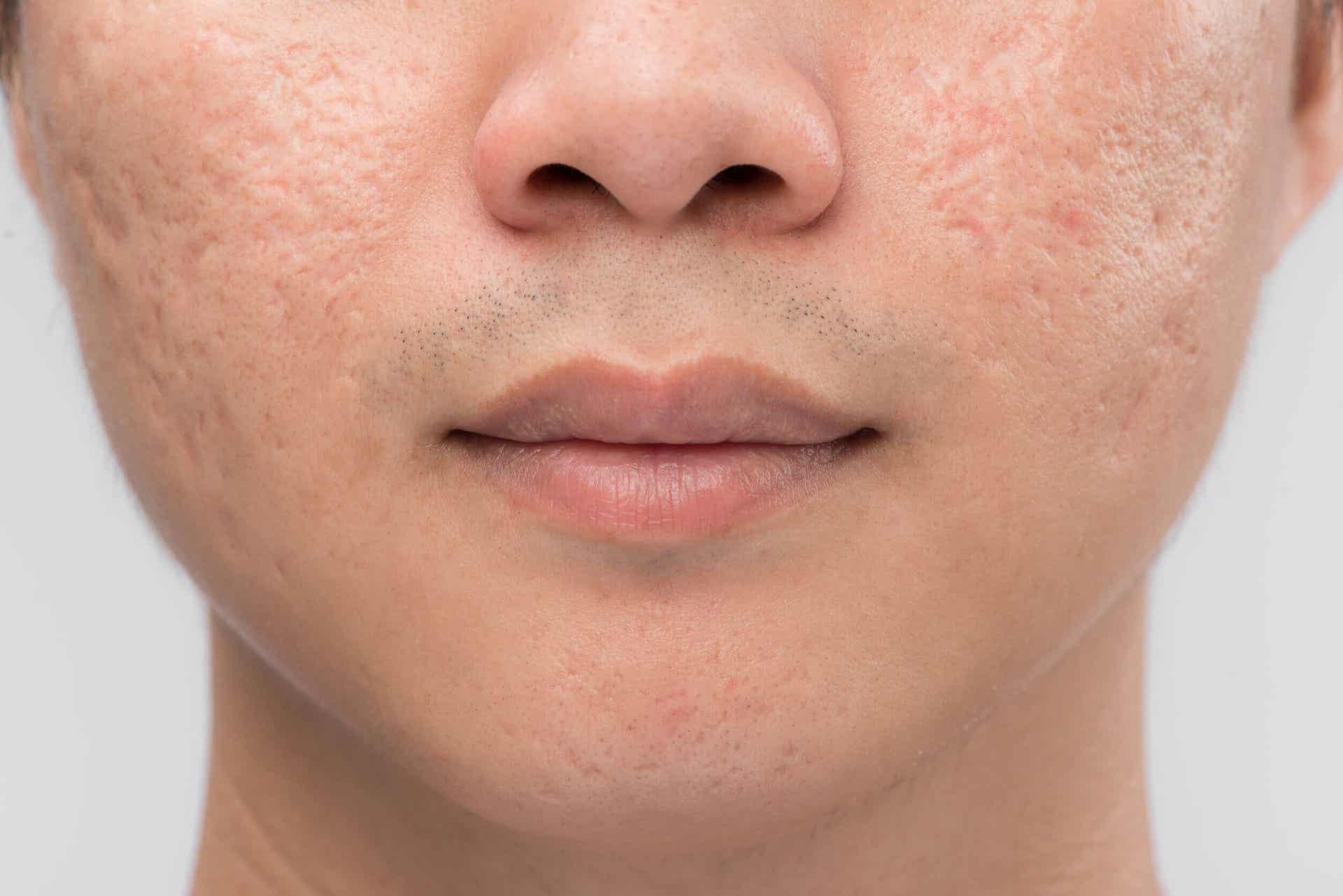 El acné conglobata puede dejar cicatrices