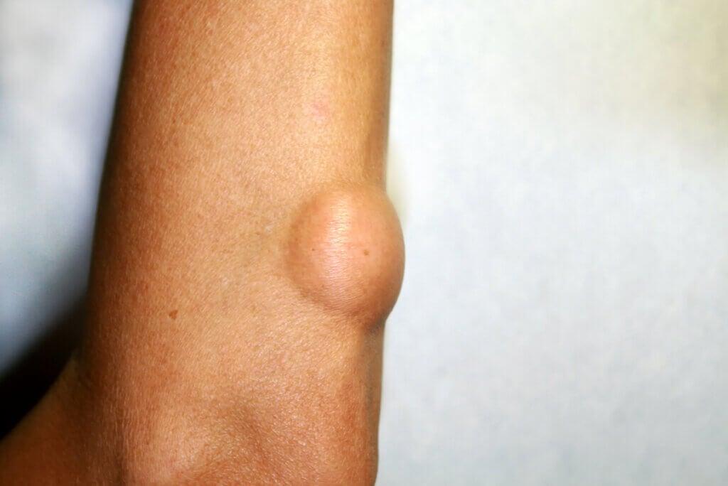 Lipomas: síntomas, causas y tratamiento