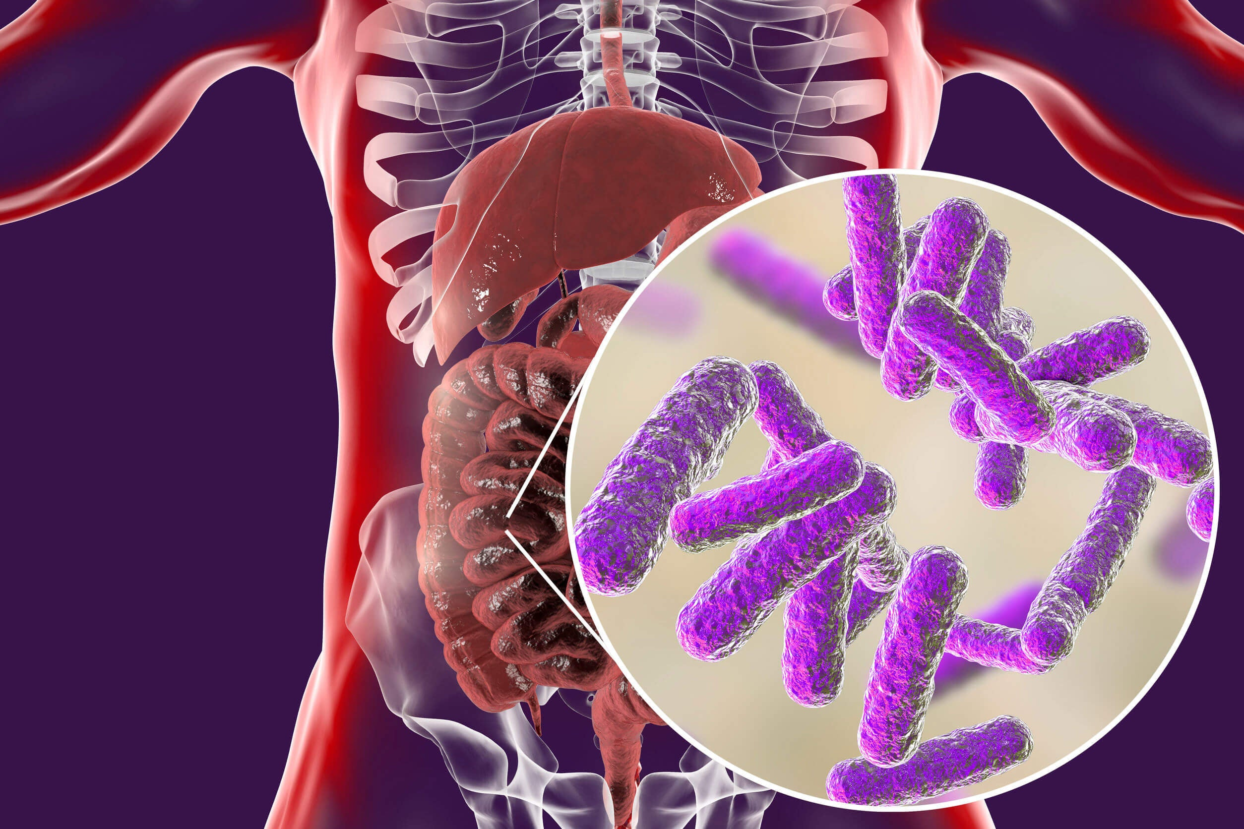 One of the barriers to losing weight is the abundant activity of intestinal bacteria.