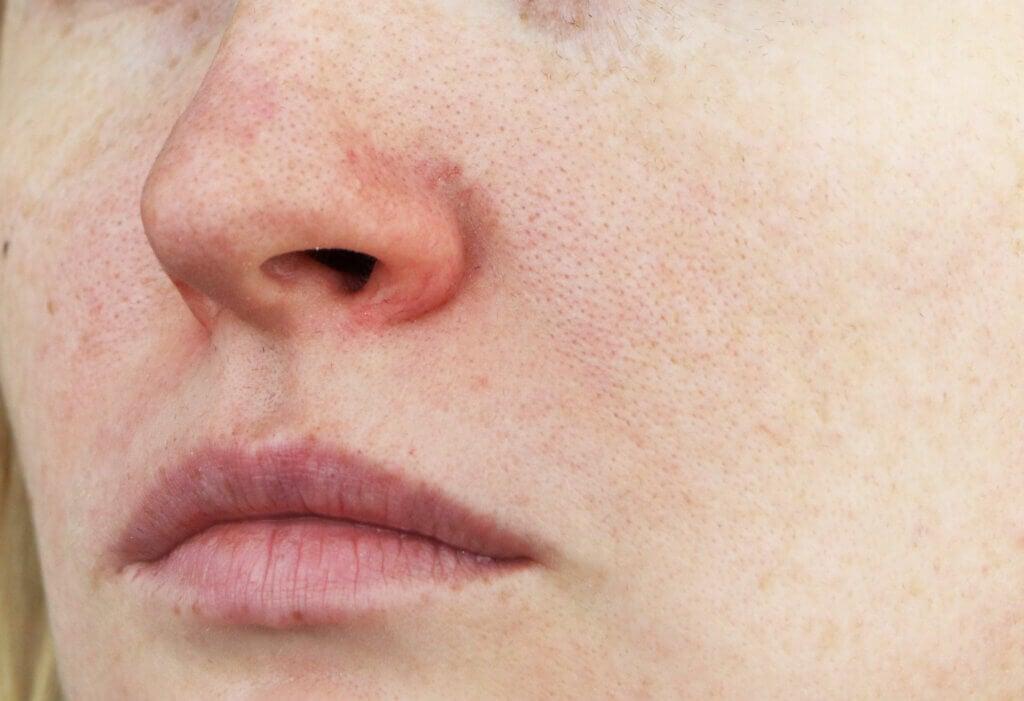 Resequedad de la piel por peróxido de benzoilo.