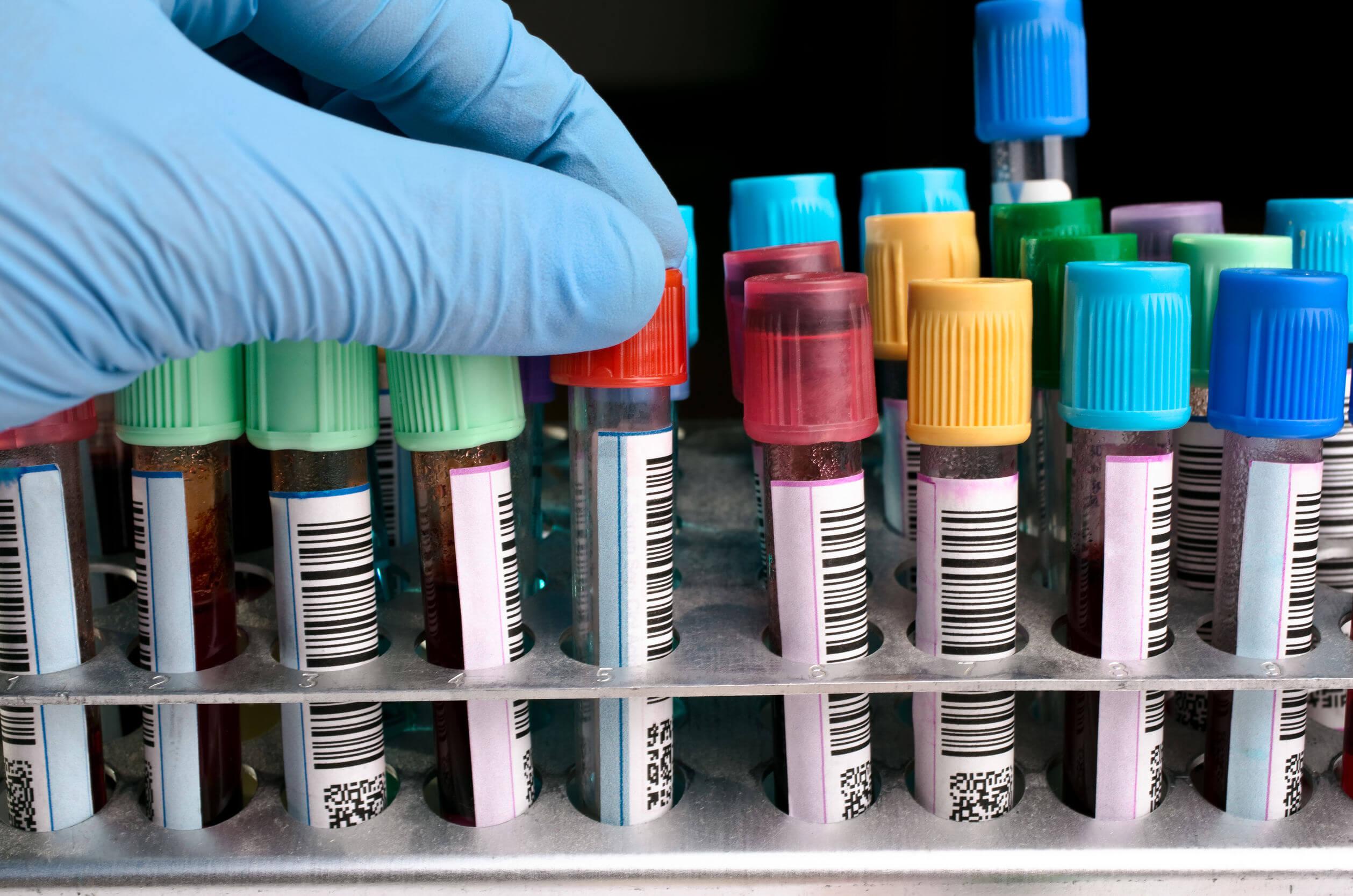 Análisis de sangre: cómo entenderlo y cuándo es útil