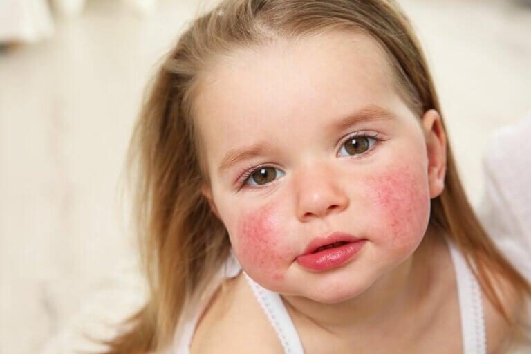Manchas rojas en la piel: causas, síntomas y tratamiento