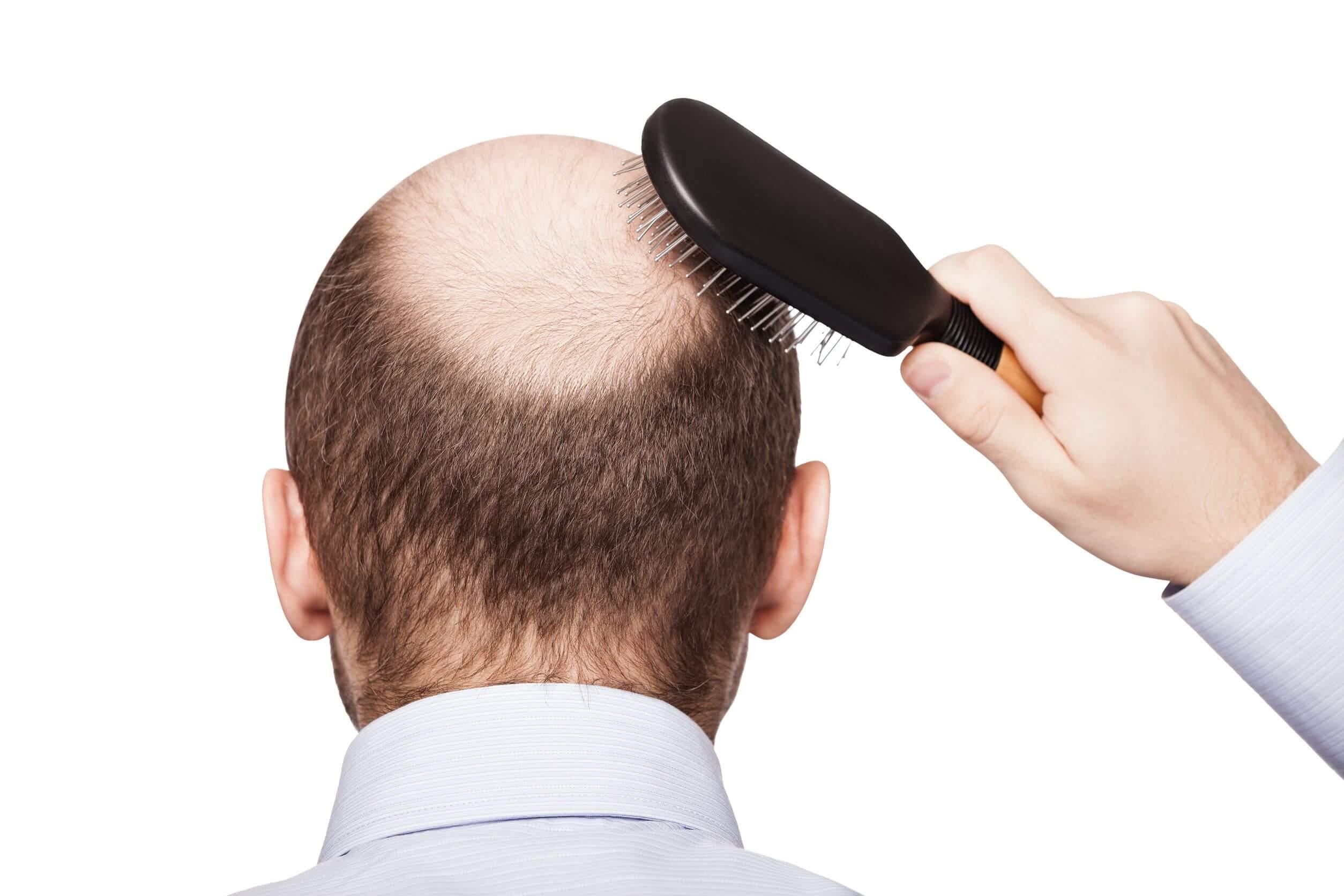 L'alopecia androgenetica è tra le 8 malattie più comuni negli uomini..