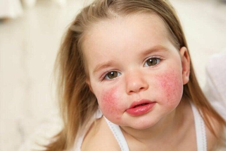 Macchie rosse sulla pelle: cause e trattamento