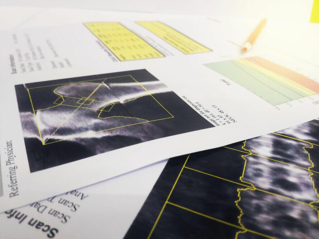 Entre las enfermedades más comunes en mujeres destaca la osteoporosis.