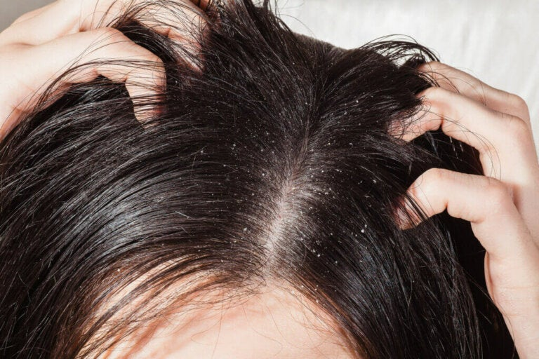 Why Does Dandruff Occur and How to Prevent it?