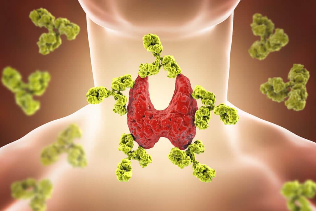 Maladie de Hashimoto: symptômes, causes et traitement