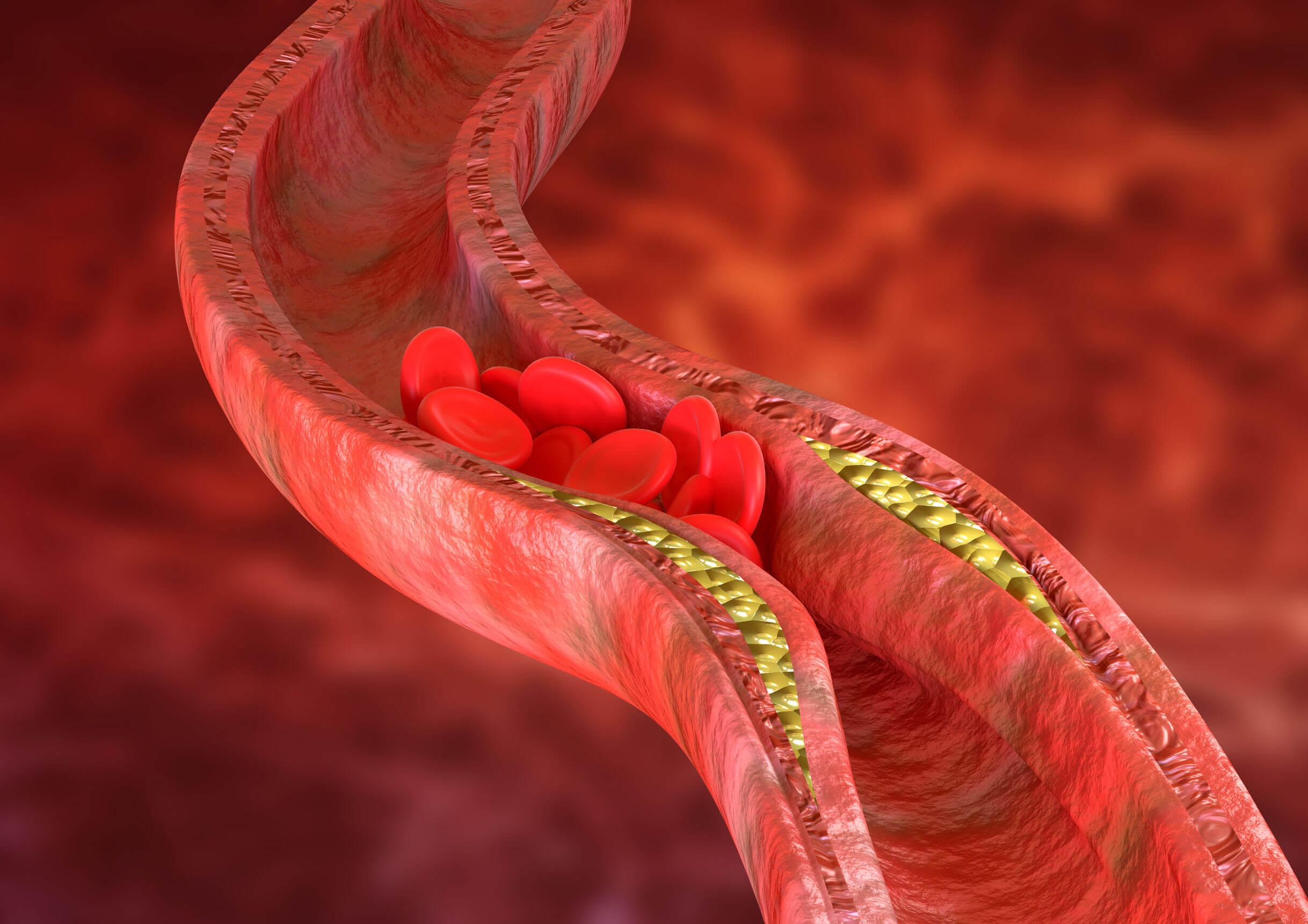 La simvastatina è un farmaco usato per trattare l'aterosclerosi.