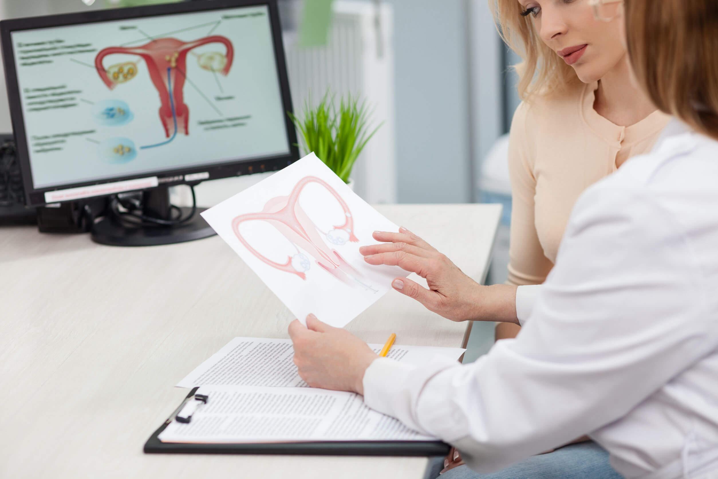 O uso de anticoncepcionais e o desenvolvimento de hipertensão geralmente não levam à interrupção do tratamento.