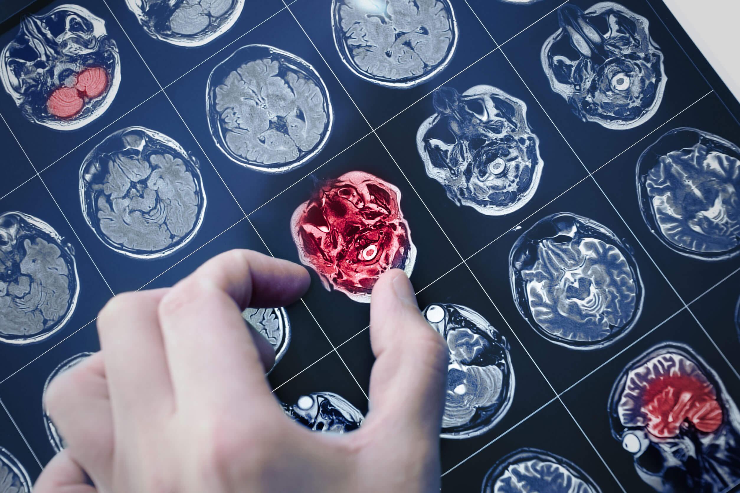 El glioma cerebral se detecta con técnicas de imagen.
