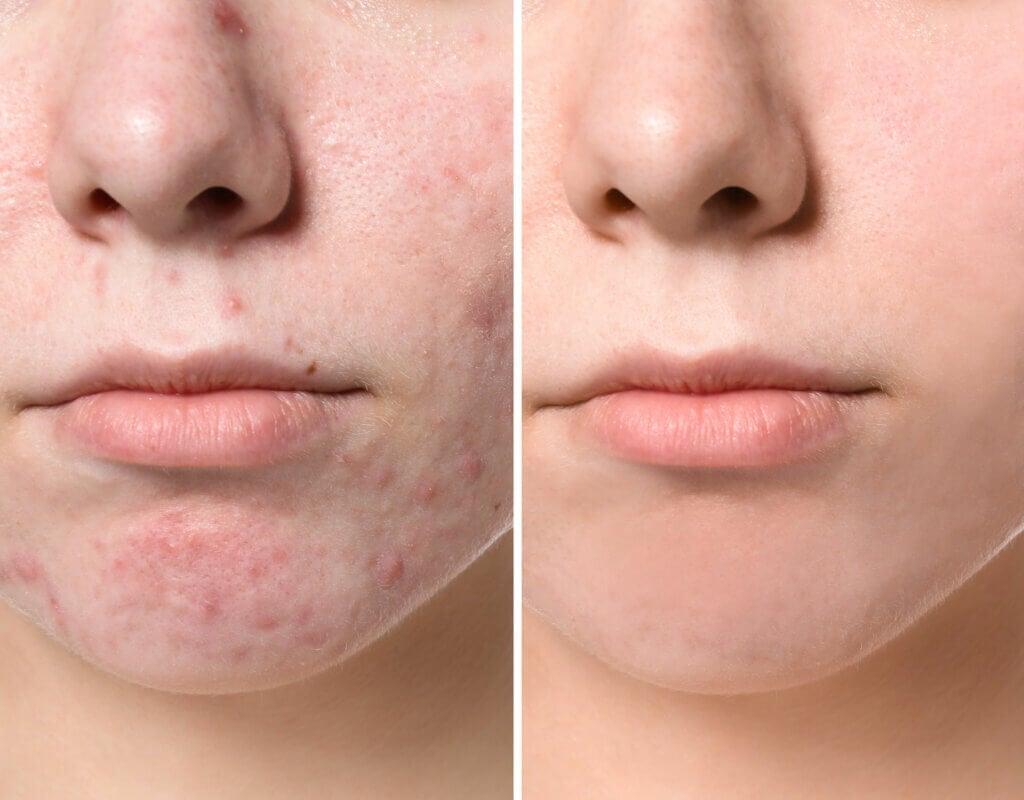6 types de boutons sur le visage et comment les traiter