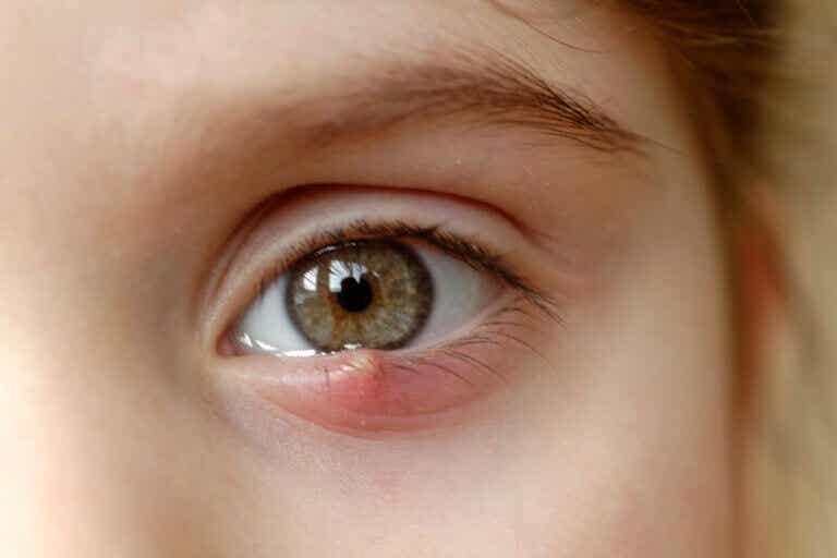 Orzuelo: síntomas, causas y tratamiento