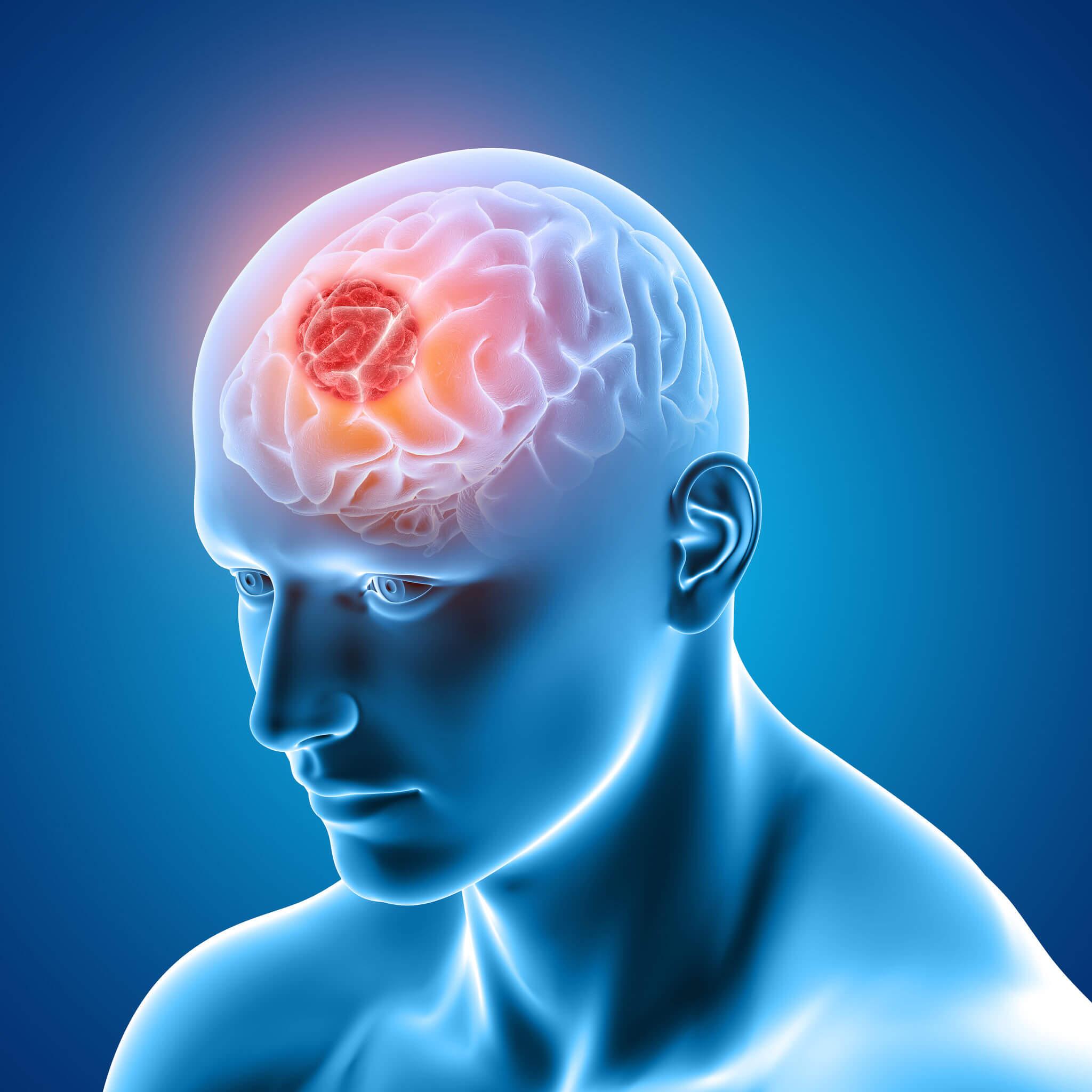 ¿Qué es el glioma cerebral?
