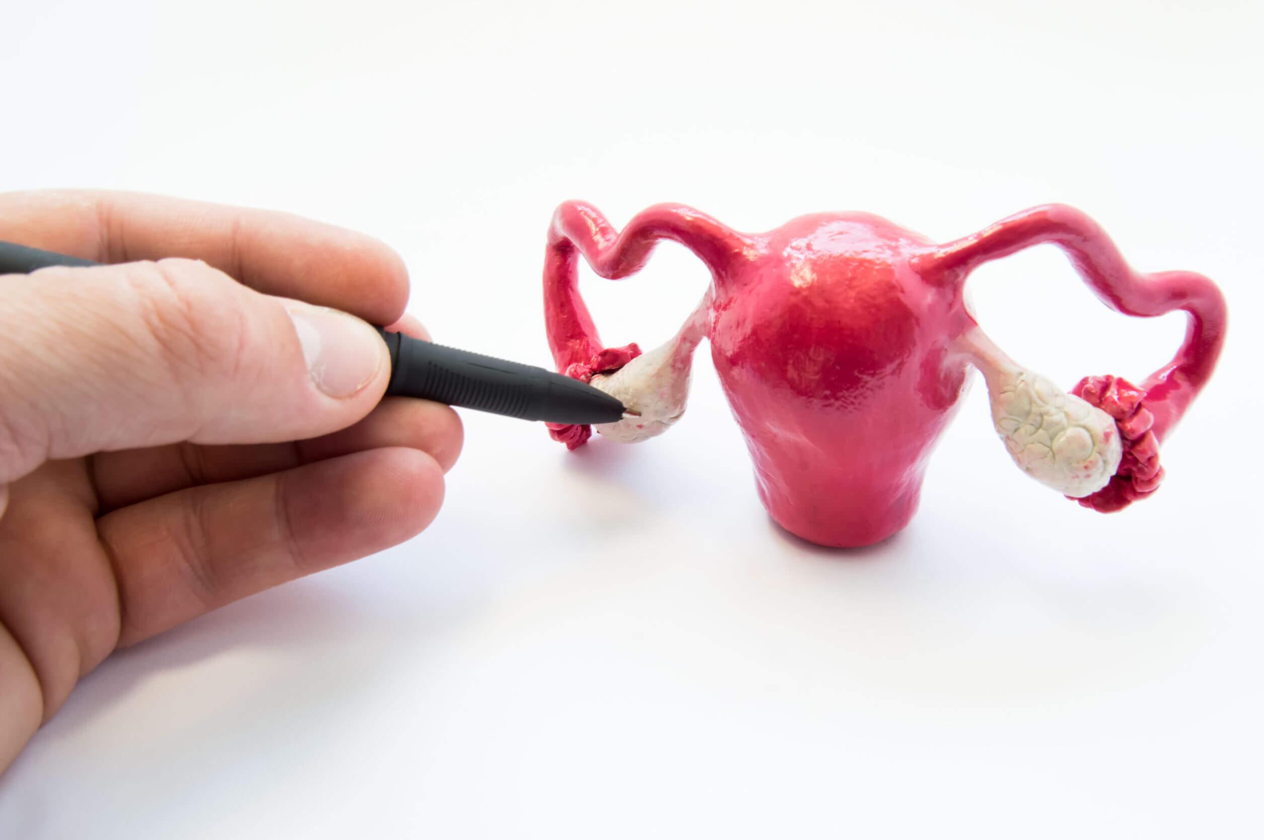 Los ovarios poliquísticos pueden disminuir la calidad de vida.