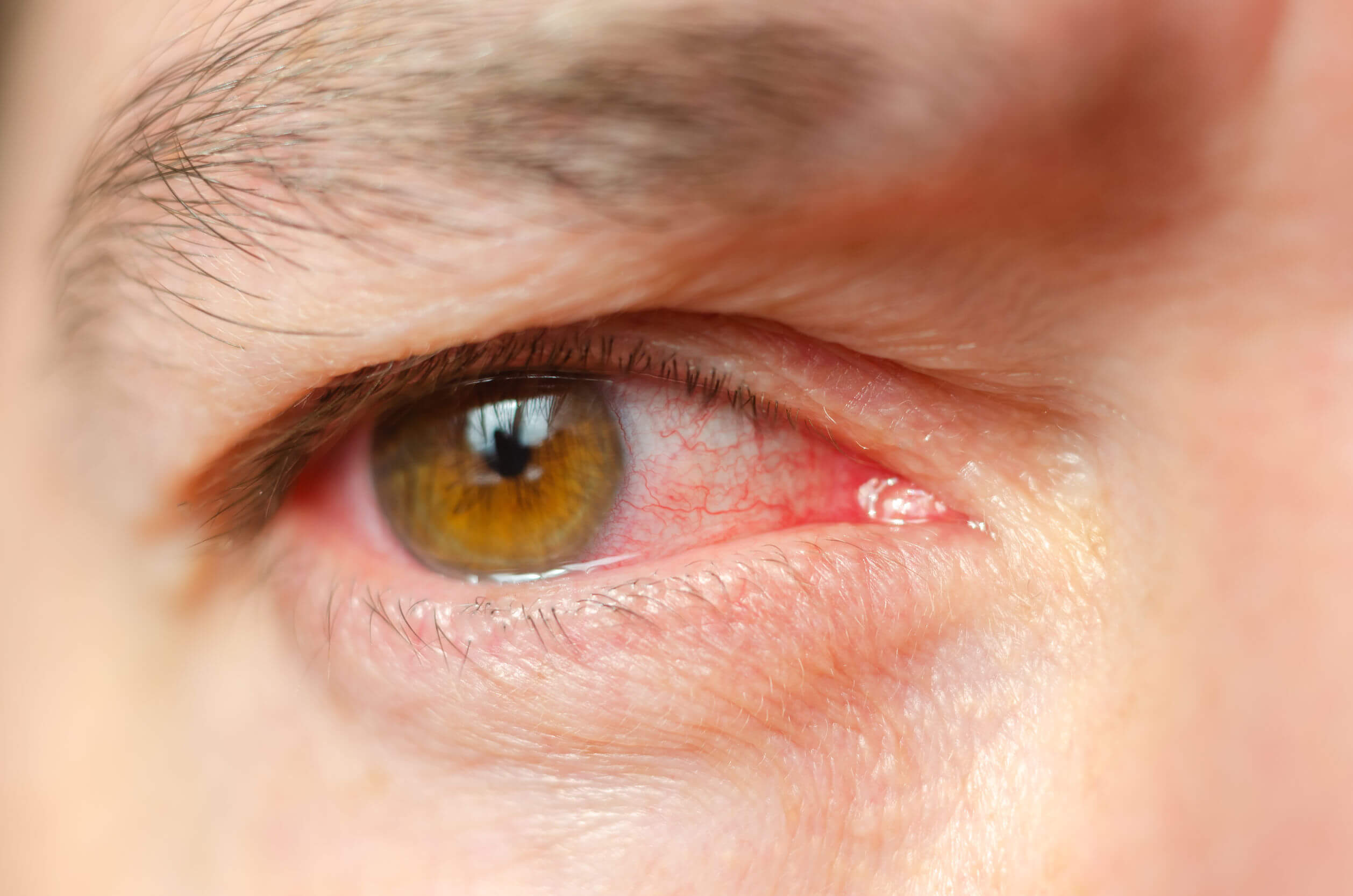 O glaucoma pode causar vários sinais e sintomas.
