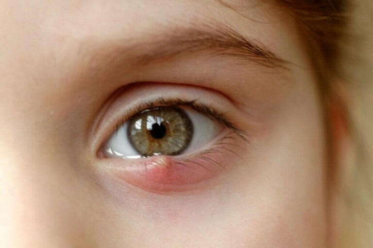 Styes: Symptoms, Causes and Treatment