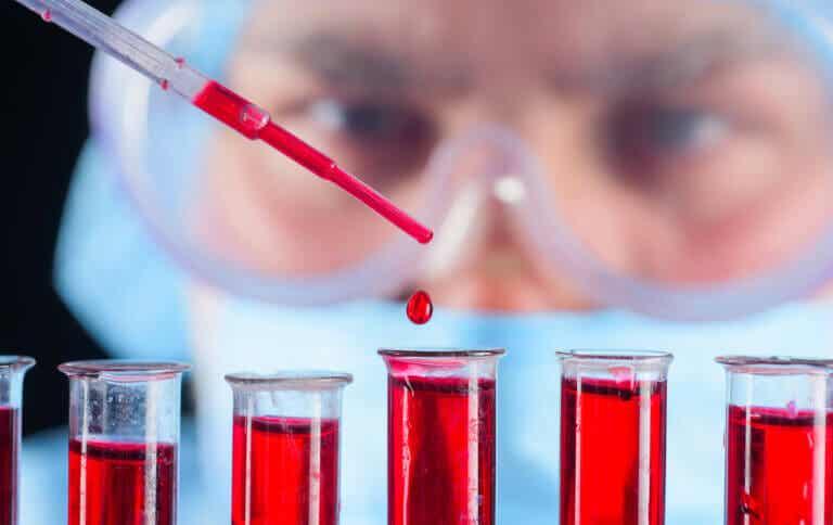 Test de O'Sullivan o prueba de azúcar: ¿en qué consiste?