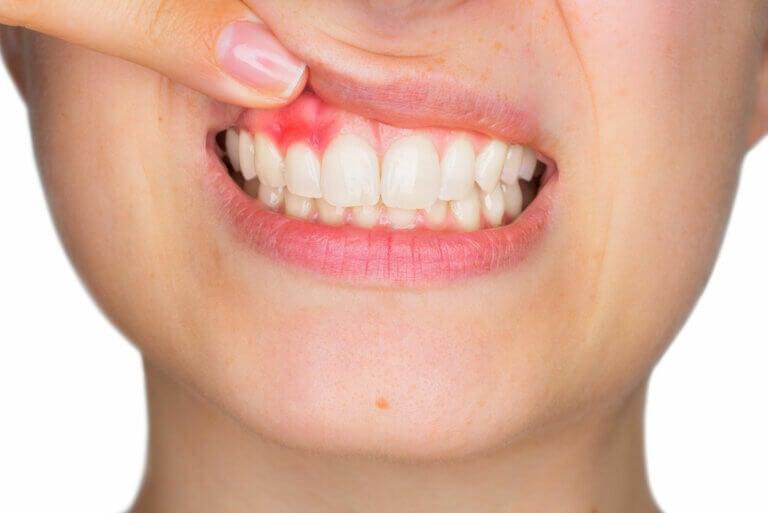 Gingivitis: síntomas, causas y tratamiento