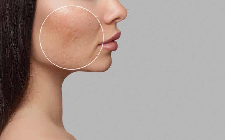 Los 8 tipos de acné