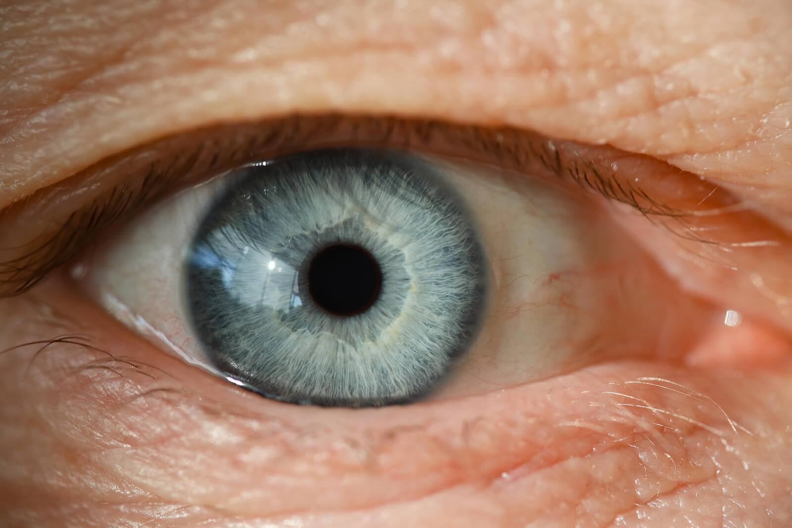 Cataracts are a common eye problem