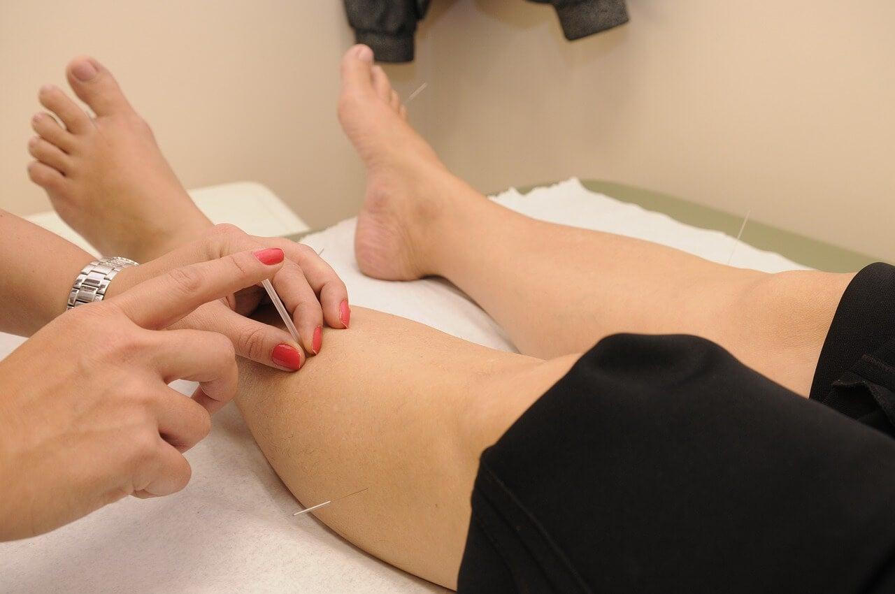 L'agopuntura per la fibromialgia è efficace