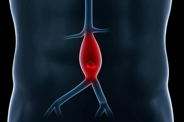 ¿Qué es un aneurisma?