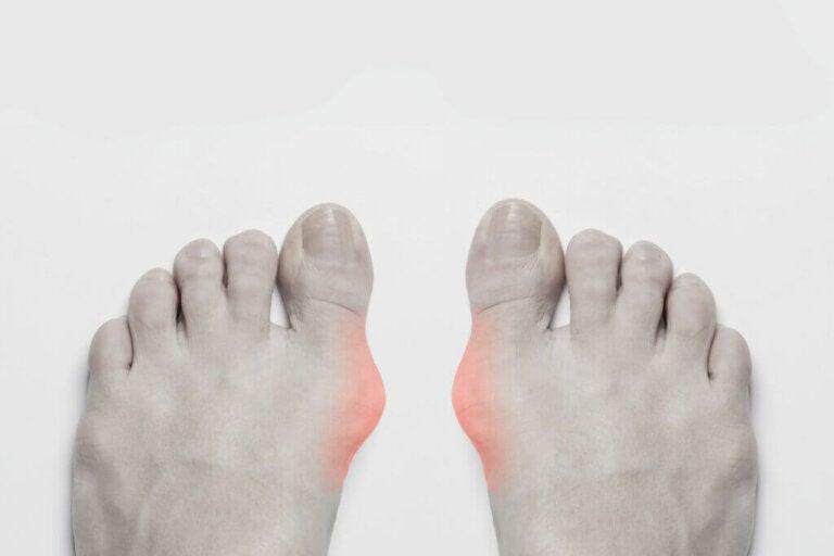 Gota: sintomas, causas e tratamento