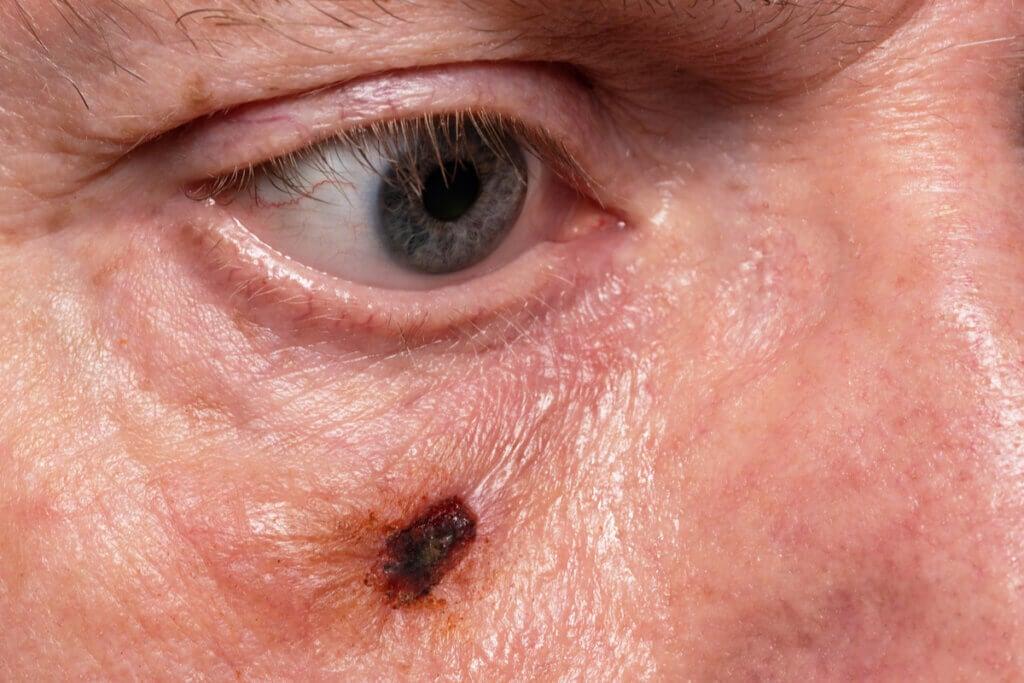 Cáncer de piel en rostro que requiere cirugía.