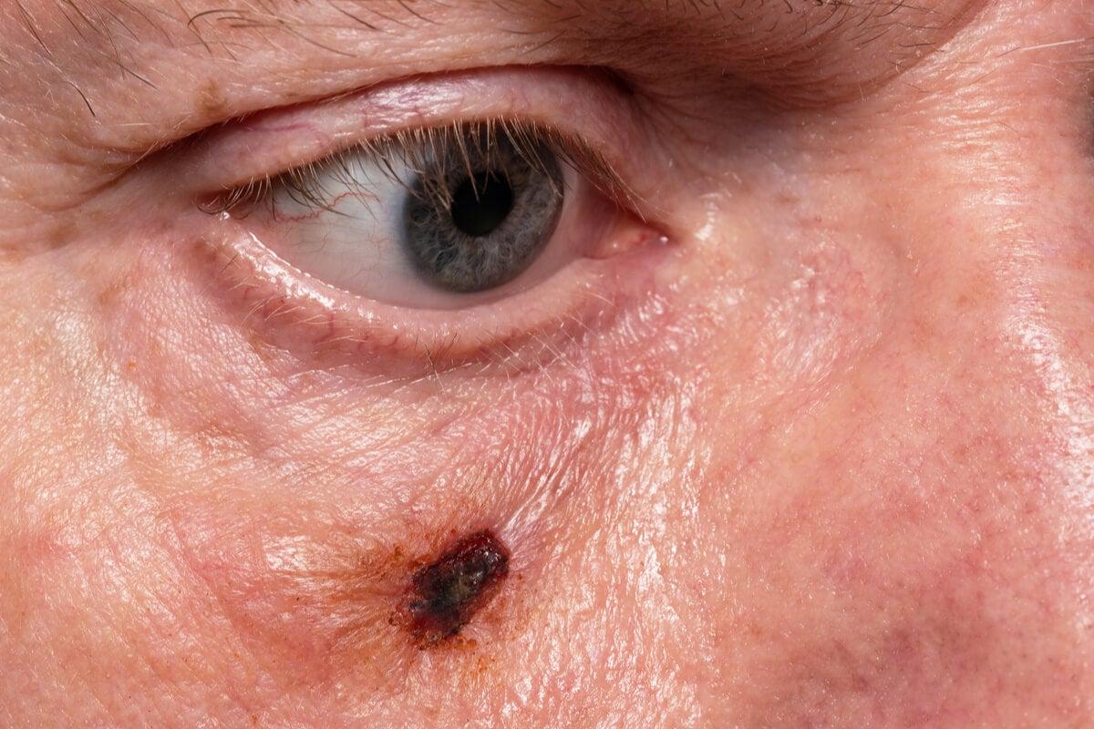O que é a dermatoscopia?