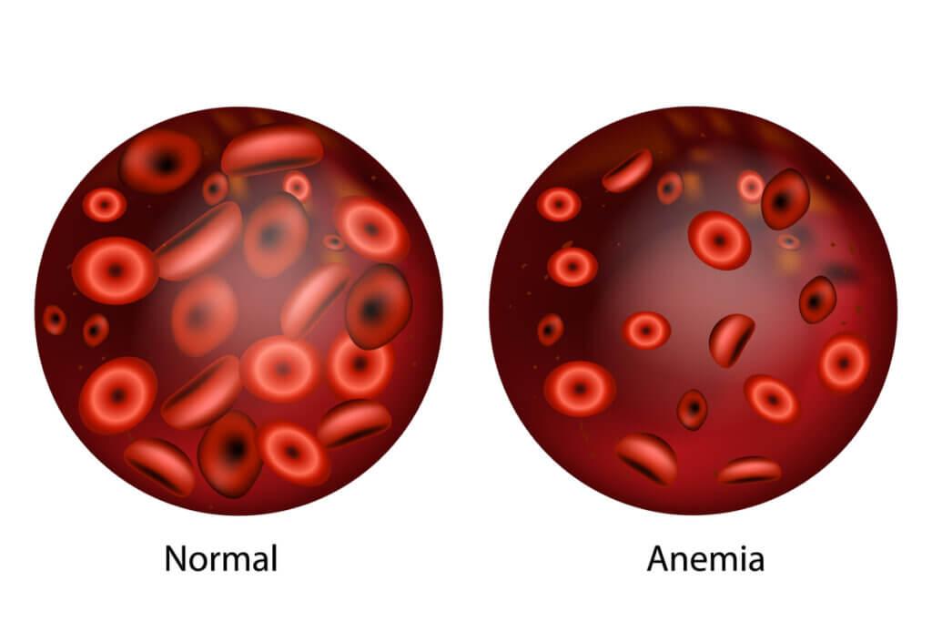 Glóbulos rojos en la anemia.