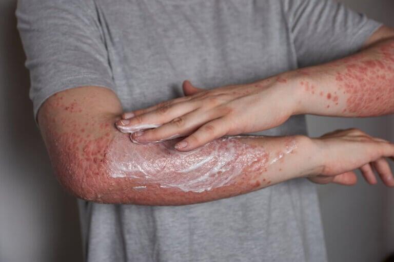 Tratamientos para la psoriasis