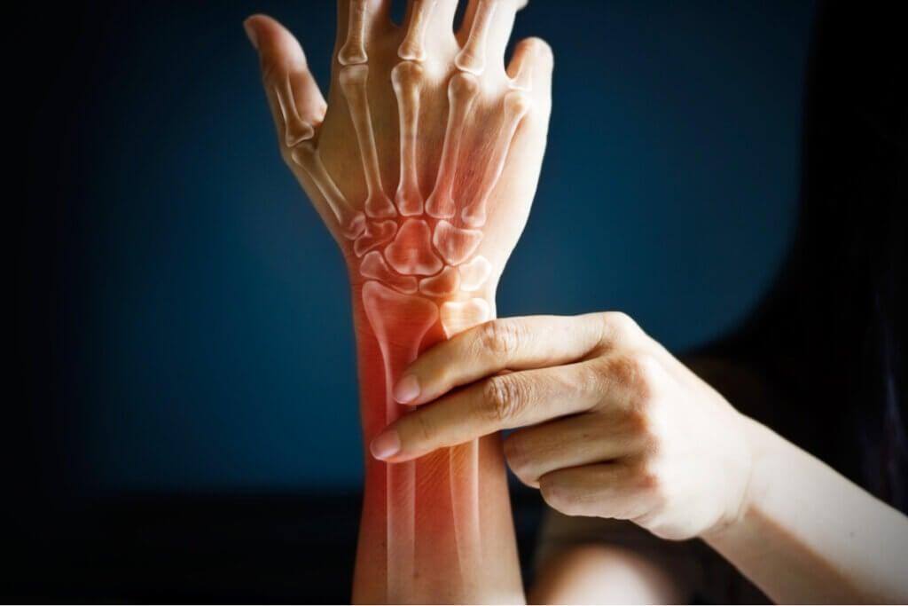 Signos y síntomas de la artritis