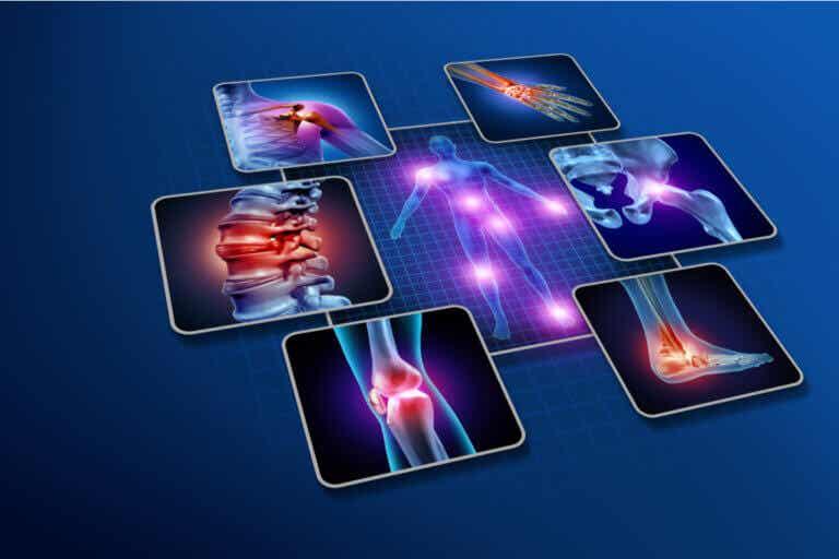 Causas y factores de riesgo de la artritis reumatoide