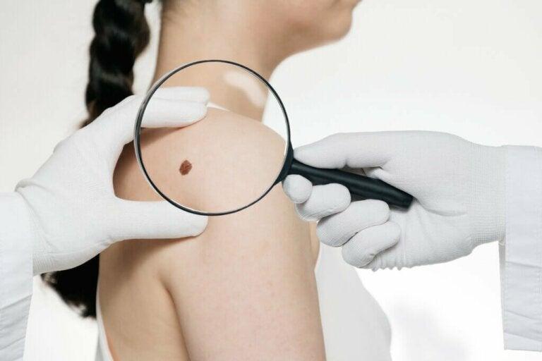 Sintomi del cancro della pelle