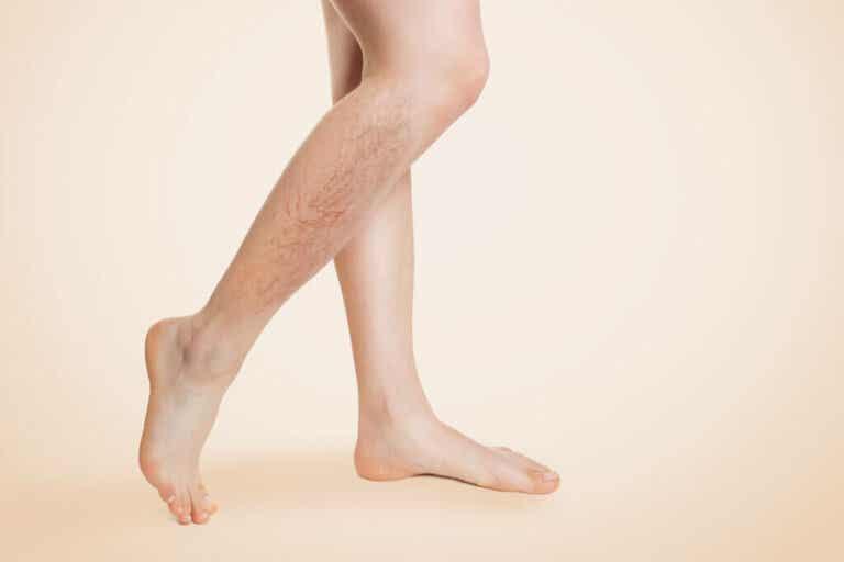 Vene varicose: sintomi, cause, prevenzione e trattamento