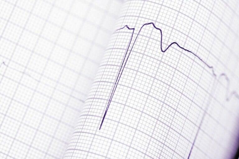 Diagnosis of Cardiac Arrhythmias