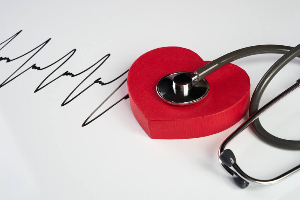 Causes and Risk Factors of Cardiac Arrhythmias
