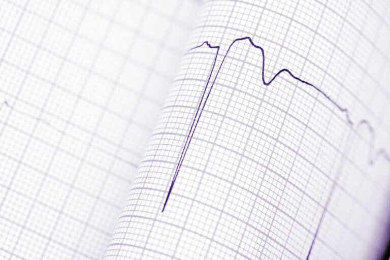 Diagnóstico de las arritmias cardíacas