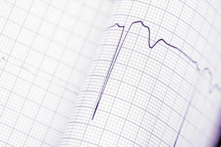 Diagnóstico das arritmias cardíacas