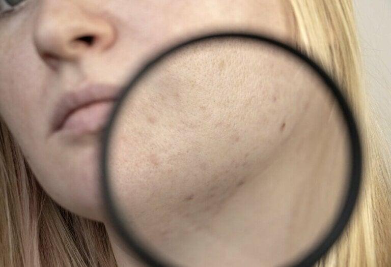 Como a acne é diagnosticada?