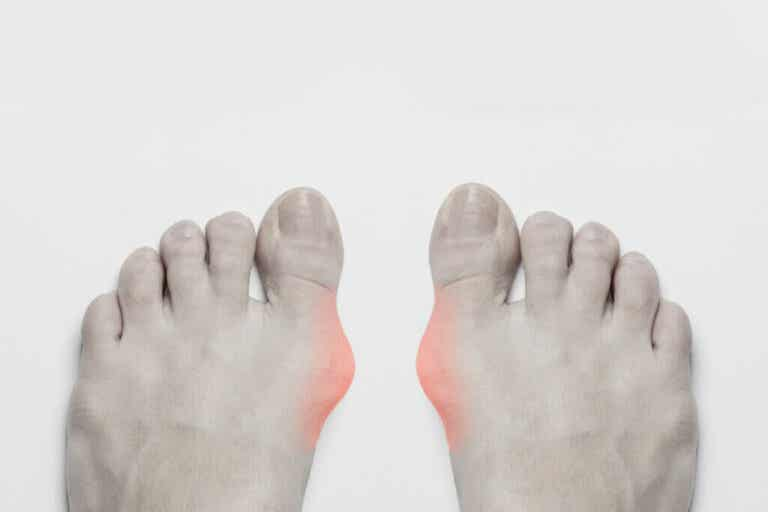 Gout: Symptoms, Causes and Treatment