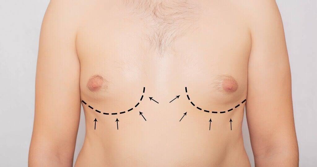 Ginecomastia: sintomas, causas e tratamento
