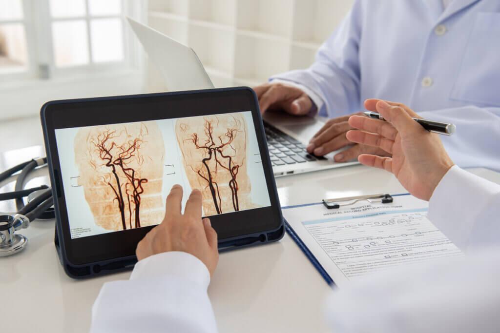 Detección de un aneurisma con imágenes.
