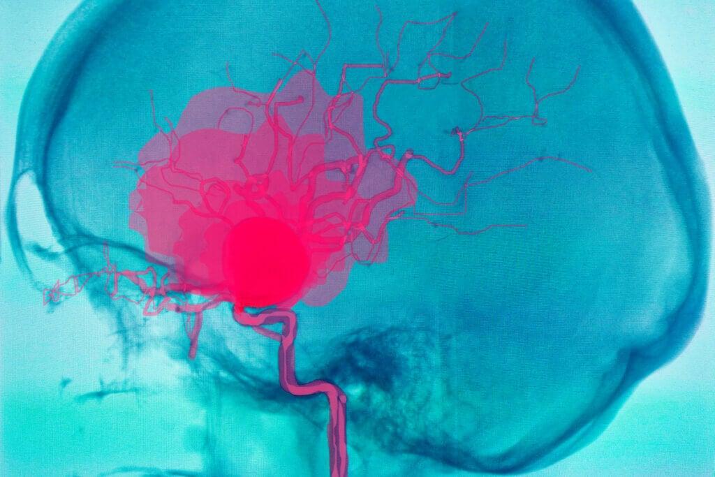 Derrame cerebral por aneurisma.
