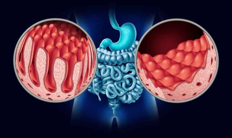 Anemia y celiaquía