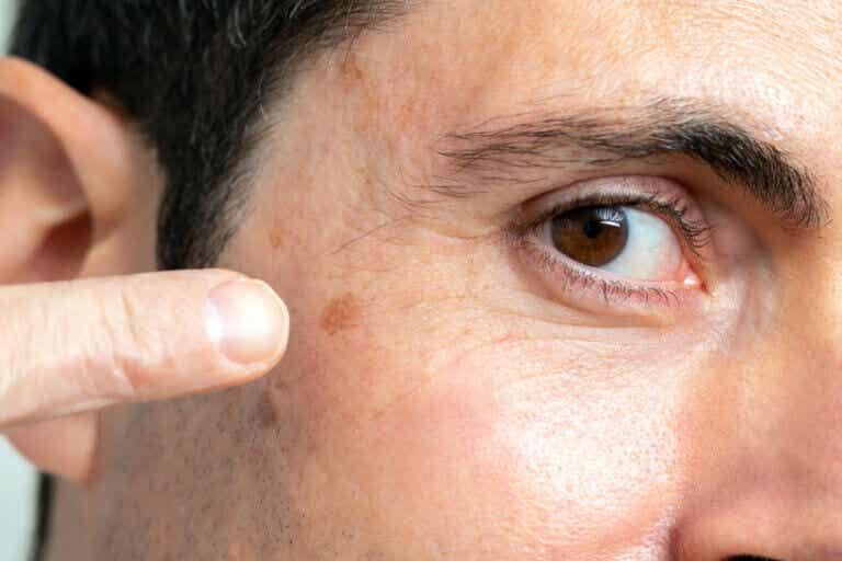 Tipos de cáncer de piel